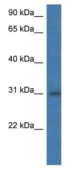 Western blot - HLA DM antibody (ab113870)