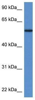 Western blot - Phosphoglucomutase 5 antibody (ab113875)