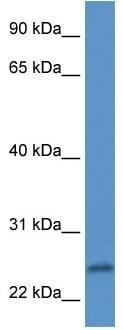 Western blot - Protease Inhibitor 15 antibody (ab113895)