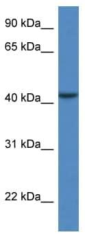 Western blot - CAB39L antibody (ab113909)
