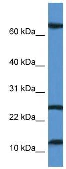 Western blot - TARP antibody (ab113914)