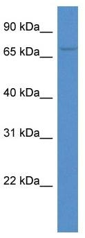 Western blot - ACSM3 antibody (ab113920)