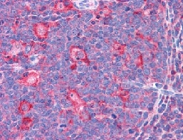 Immunohistochemistry (Formalin/PFA-fixed paraffin-embedded sections) - Anti-TPD52L2 antibody (ab113952)