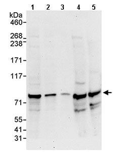Western blot - Anti-ABCF3 antibody (ab113953)