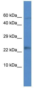 Western blot - MRPL21 antibody (ab113957)