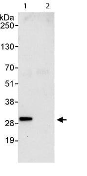 Immunoprecipitation - BTF3 antibody (ab113974)