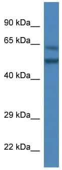 Western blot - Optimedin antibody (ab113978)