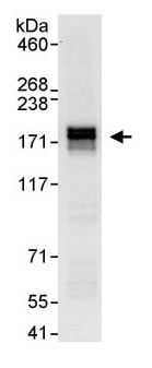 Immunoprecipitation - Anti-MTUS1 antibody (ab113979)