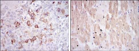 Immunohistochemistry (Formalin/PFA-fixed paraffin-embedded sections) - Anti-Hsp27 antibody [5D7] (ab114067)