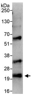 Immunoprecipitation - Anti-Bad antibody (ab114105)