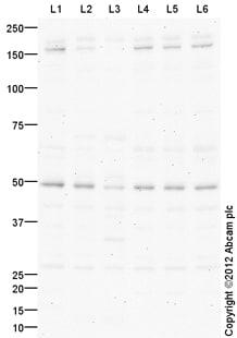 Western blot - Anti-Sonic Hedgehog antibody (ab114122)