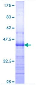 SDS-PAGE - Integrin beta 7 protein (ab114398)