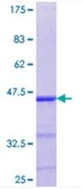 SDS-PAGE - ELK4 protein (ab114409)