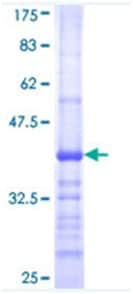 SDS-PAGE - FCGR1A protein (ab114415)