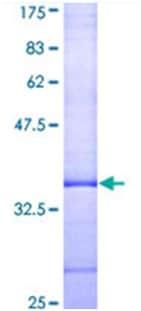 SDS-PAGE - Adenosine A3 Receptor protein (ab114790)