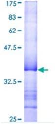 SDS-PAGE - PRKX protein (ab114807)