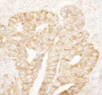 Immunohistochemistry (Formalin/PFA-fixed paraffin-embedded sections) - Anti-RPL7A antibody (ab114861)
