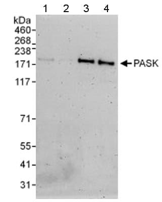 Western blot - Anti-PASK antibody (ab114988)