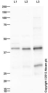 Western blot - Anti-Cardiac Troponin T antibody (ab115134)