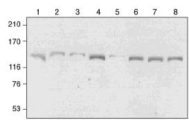 Western blot - Anti-GAK antibody [1C2] (ab115179)