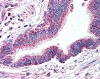 - Anti-ApoER2 antibody (ab115196)