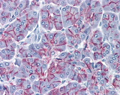 Immunohistochemistry (Formalin/PFA-fixed paraffin-embedded sections) - Anti-Claudin 1 antibody [1C5-D9] (ab115225)