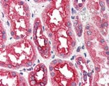 Immunohistochemistry (Formalin/PFA-fixed paraffin-embedded sections) - Anti-CPT1A antibody (ab115269)