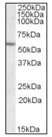 Western blot - Anti-Liver Carboxylesterase 1 antibody (ab115280)
