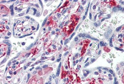 Immunohistochemistry (Formalin/PFA-fixed paraffin-embedded sections) - Anti-CD73 antibody (ab115289)