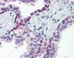 Immunohistochemistry (Formalin/PFA-fixed paraffin-embedded sections) - Anti-HSF1 antibody [J7F9] (ab115303)