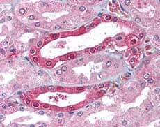Immunohistochemistry (Formalin/PFA-fixed paraffin-embedded sections) - Anti-Carbonic Anhydrase II antibody (ab115306)
