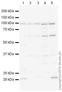 Western blot - Anti-Mkl1 antibody (ab115319)