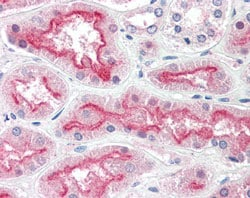 Immunohistochemistry (Formalin/PFA-fixed paraffin-embedded sections) - Anti-CENTG3 antibody (ab115459)