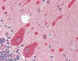 Immunohistochemistry (Formalin/PFA-fixed paraffin-embedded sections) - Anti-KA1 antibody (ab115472)