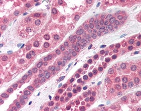 Immunohistochemistry (Formalin/PFA-fixed paraffin-embedded sections) - Anti-Amisyn antibody (ab115479)