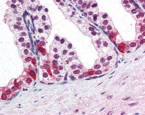 Immunohistochemistry (Formalin/PFA-fixed paraffin-embedded sections) - Anti-BAF57/SMARCE1 antibody (ab115512)