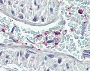 Immunohistochemistry (Formalin/PFA-fixed paraffin-embedded sections) - Anti-Pleckstrin antibody (ab115514)