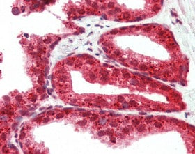 Immunohistochemistry (Formalin/PFA-fixed paraffin-embedded sections) - Anti-RASD2 antibody (ab115516)