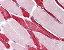 Immunohistochemistry (Formalin/PFA-fixed paraffin-embedded sections) - Anti-HAUSP / USP7 antibody (ab115536)