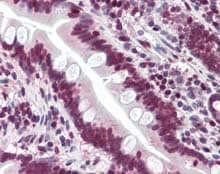 Immunohistochemistry (Formalin/PFA-fixed paraffin-embedded sections) - Anti-LASS6 antibody (ab115539)