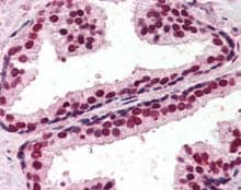 Immunohistochemistry (Formalin/PFA-fixed paraffin-embedded sections) - Anti-RING2 / RING1B / RNF2 antibody (ab115550)