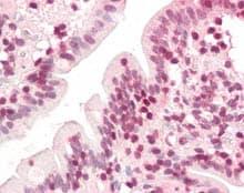 Immunohistochemistry (Formalin/PFA-fixed paraffin-embedded sections) - Anti-ZIC5 antibody (ab115566)