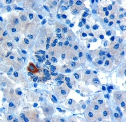 Immunohistochemistry (Formalin/PFA-fixed paraffin-embedded sections) - Anti-PAR6 antibody (ab115612)