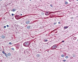 Immunohistochemistry (Formalin/PFA-fixed paraffin-embedded sections) - Anti-GRASP1 antibody (ab115630)