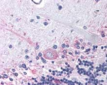 Immunohistochemistry (Formalin/PFA-fixed paraffin-embedded sections) - Anti-Prostaglandin E Receptor EP3 antibody (ab115667)