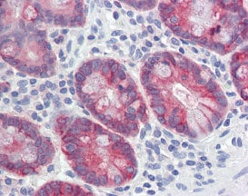 Immunohistochemistry (Formalin/PFA-fixed paraffin-embedded sections) - Anti-Anterior Gradient 2 antibody (ab115734)