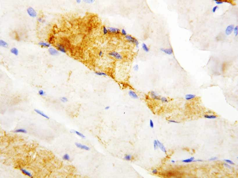 Immunohistochemistry (Formalin/PFA-fixed paraffin-embedded sections) - Anti-Carbonic Anhydrase III antibody (ab115789)