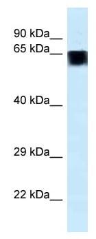 Western blot - Anti-FAM161A antibody (ab115802)