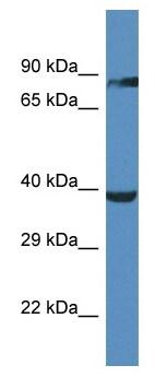 Western blot - Anti-OR2M5 antibody (ab115804)
