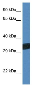 Western blot - Anti-THAP11 antibody (ab115837)